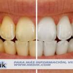 Métodos Caseros de Blanqueamiento Dental