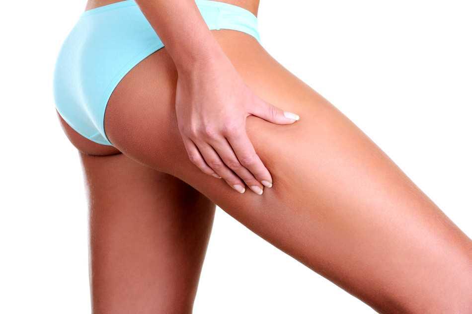 Mujer pellizcando la piel en busca de celulitis