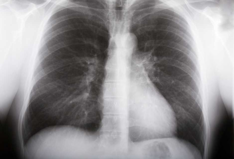 Ecografia de torax - Tuberculosis