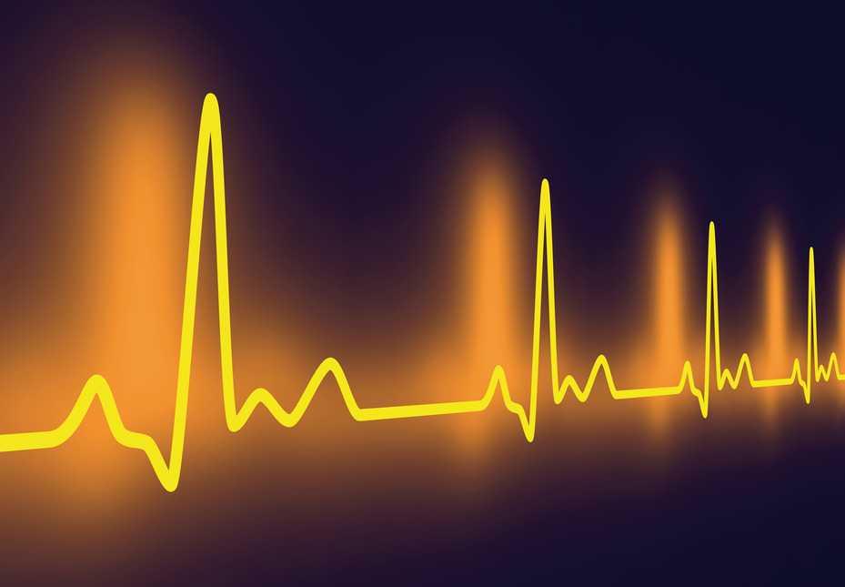 Latidos del corazón con taquicardia