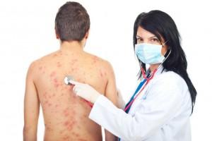 Medico examinando paciente con urticaria
