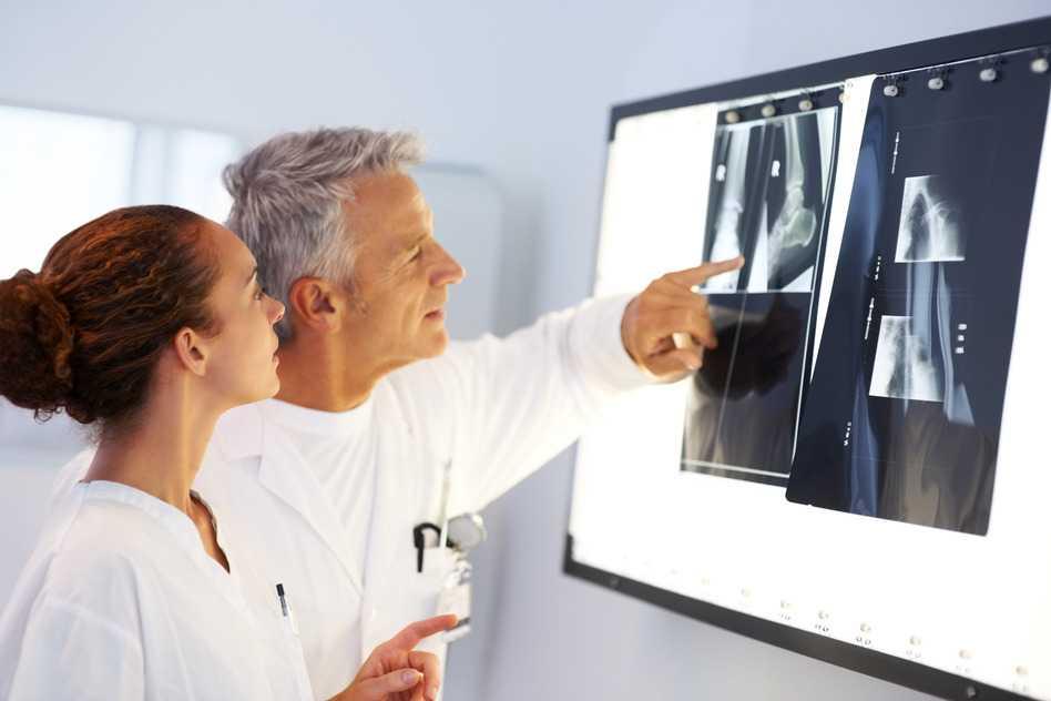 Medicos analizando la sarcoidosis