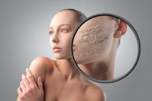 Mujer con una representación de eczema