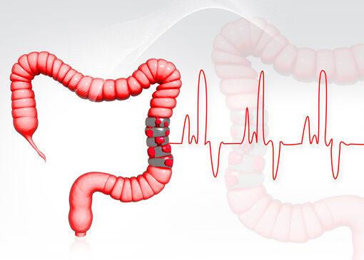 sintomas de cancer de colon